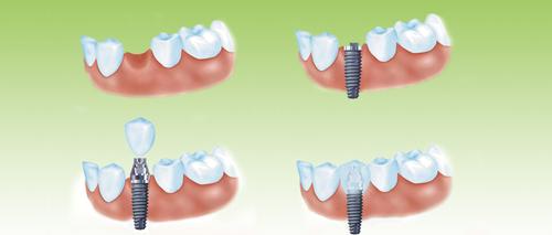 种植体周围炎是种植义齿常见的并发症:因为种植体周围组织结构薄弱